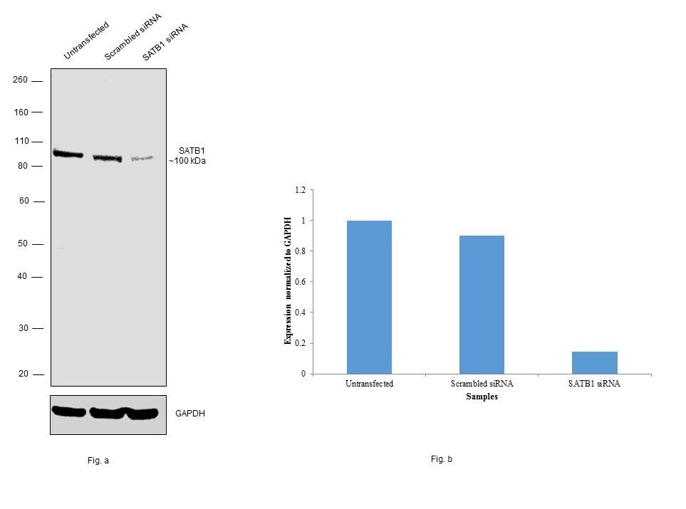 SATB1 Antibody in Knockdown