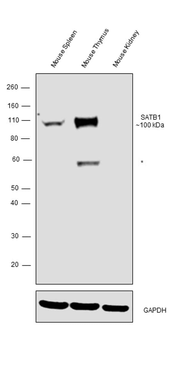 SATB1 Antibody in Relative expression