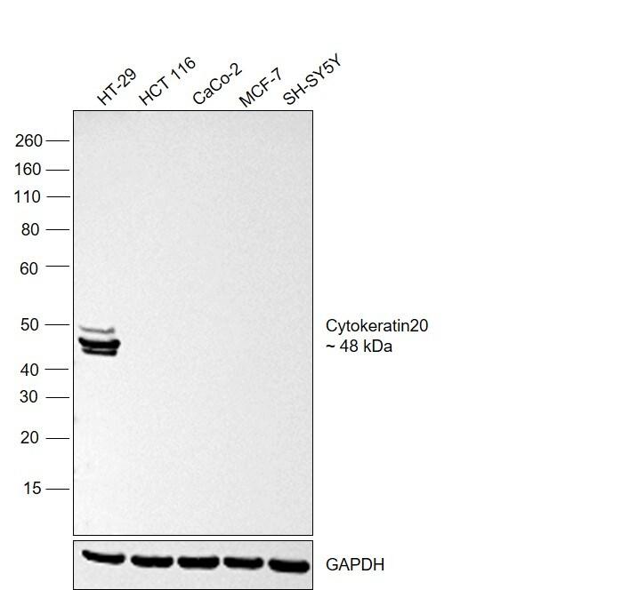 Cytokeratin 20 Antibody in Relative expression