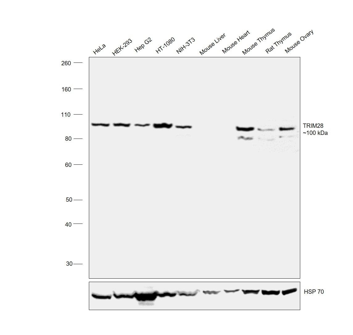 TRIM28 Antibody in Relative expression