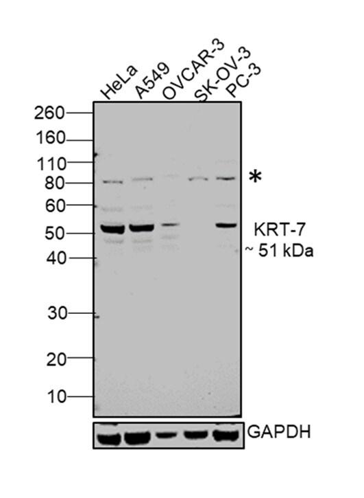 Cytokeratin 7 Antibody in Relative expression