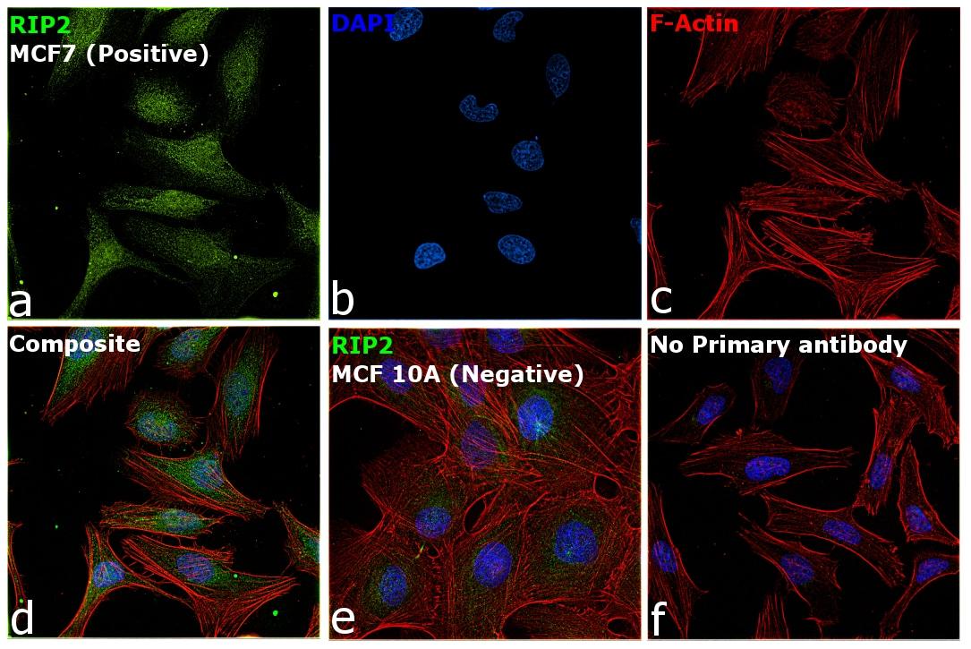 RIP2 Antibody in Immunocytochemistry (ICC)