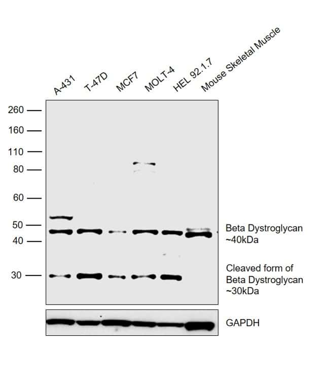 beta Dystroglycan Antibody in Relative expression
