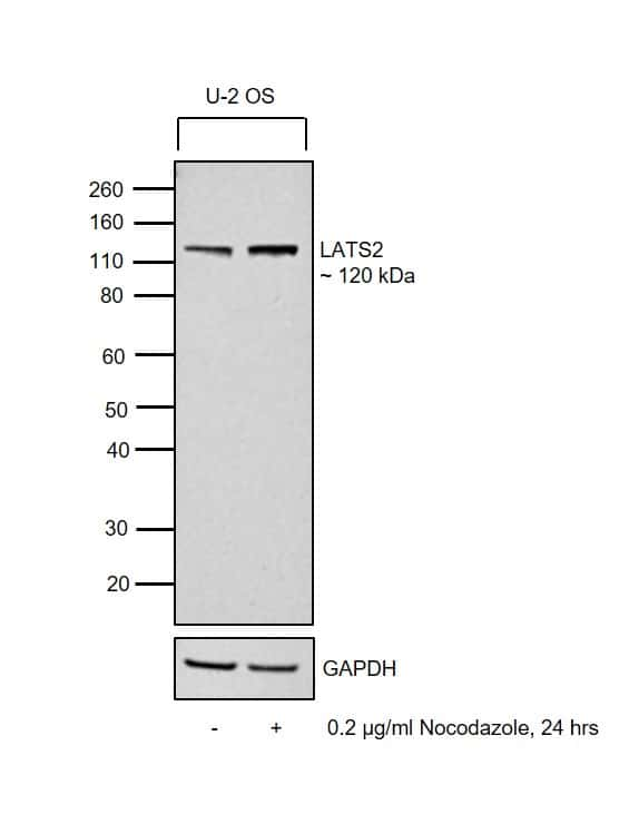 LATS2 Antibody in Cell treatment