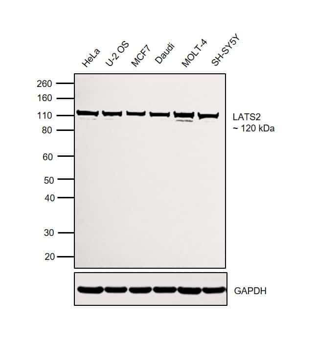 LATS2 Antibody in Western Blot (WB)