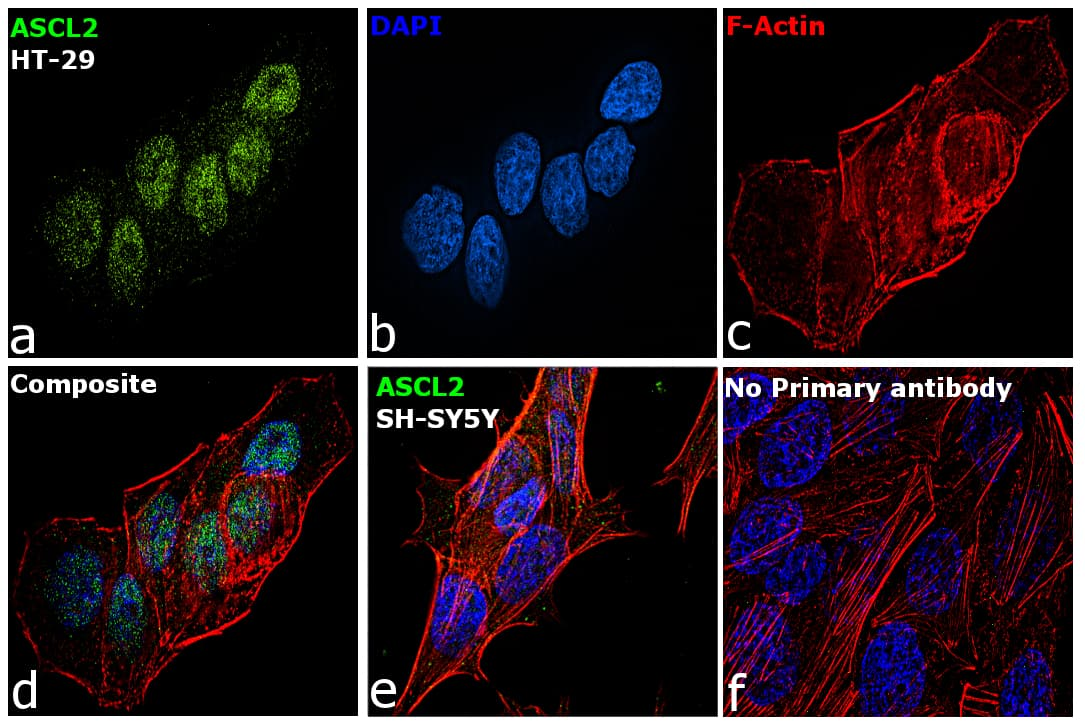 ASCL2 Antibody in Relative expression