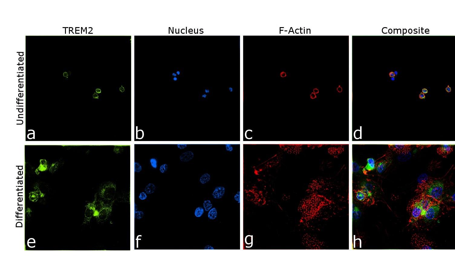 TREM2 Antibody in Relative expression