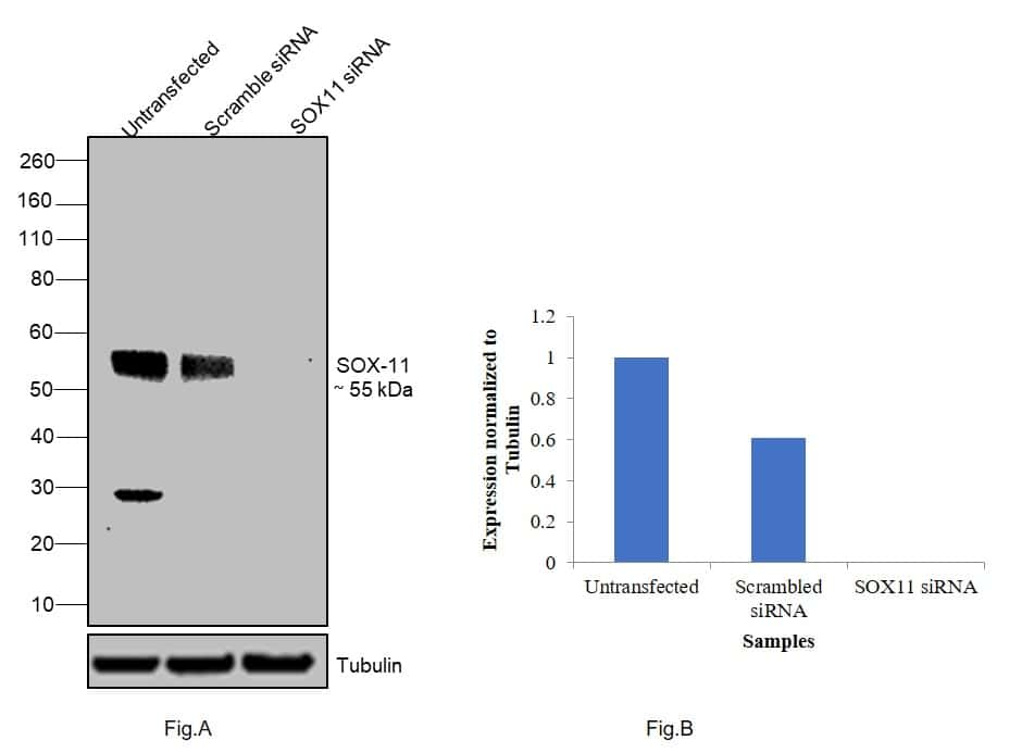 SOX11 Antibody in Western Blot (WB)
