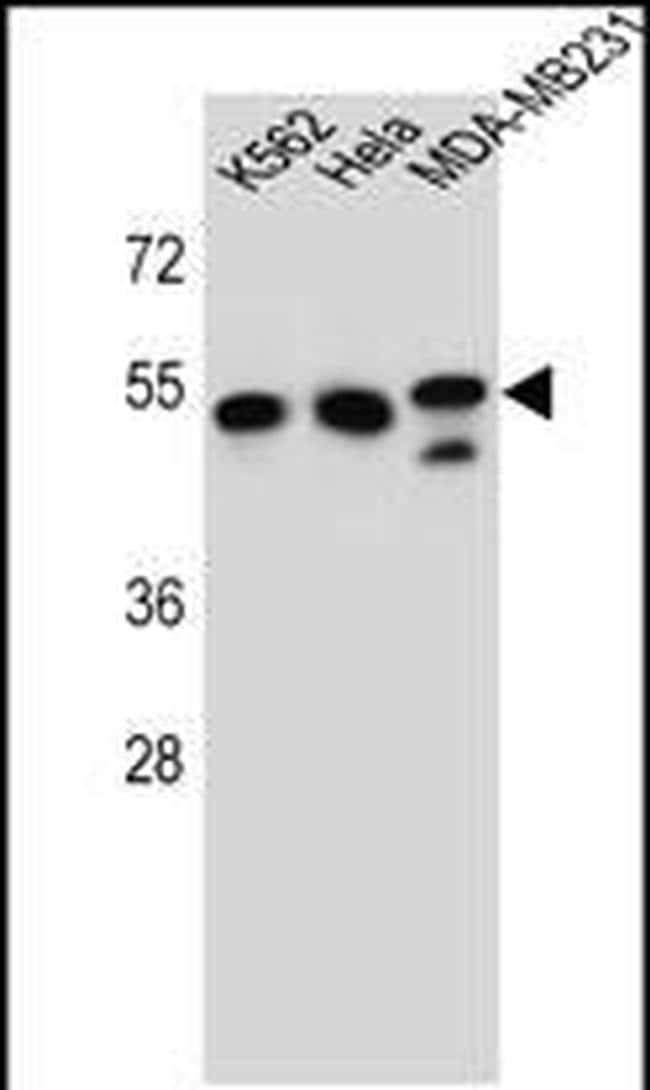 TUBB6 Antibody in Western Blot (WB)