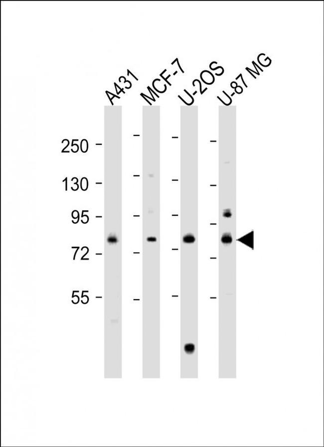 PLOD1 Antibody in Western Blot (WB)