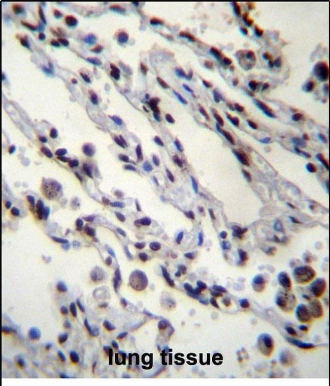HIST1H2BN Antibody in Immunohistochemistry (Paraffin) (IHC (P))