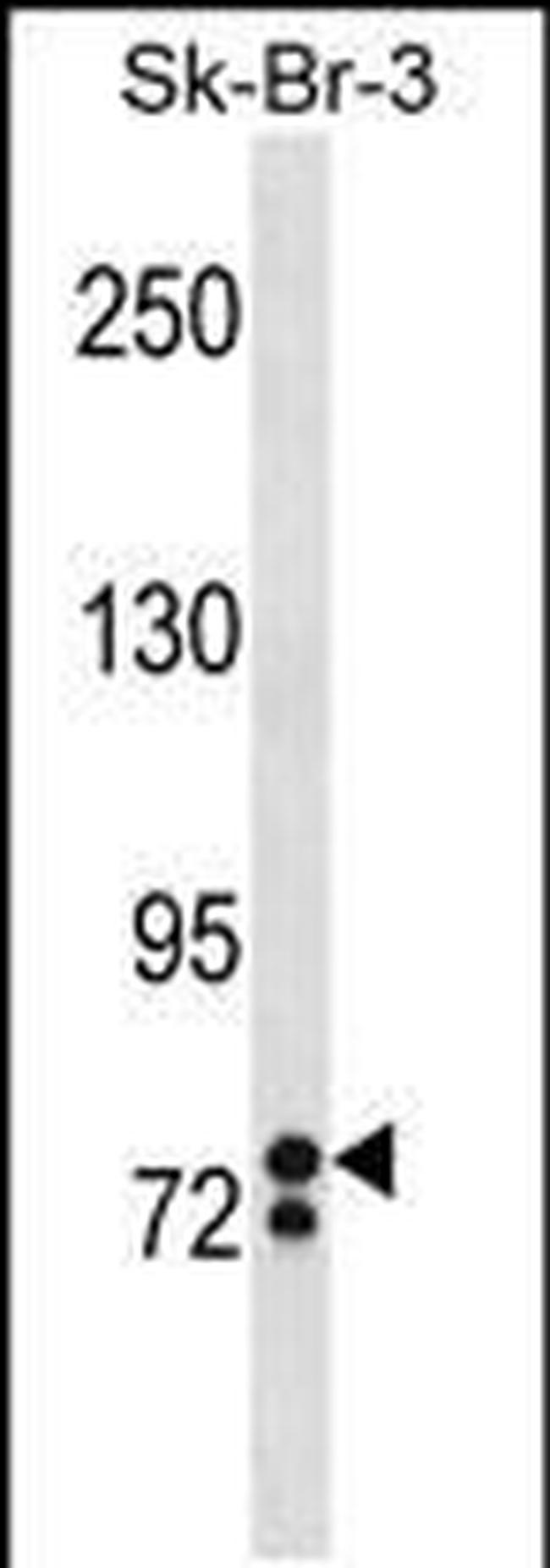 ZNF263 Antibody in Western Blot (WB)