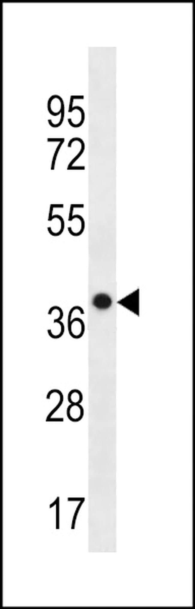 CLCA3P Antibody in Western Blot (WB)