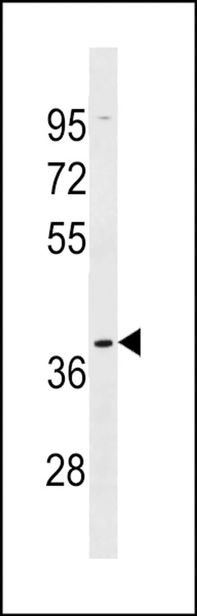 OR5AK2 Antibody in Western Blot (WB)