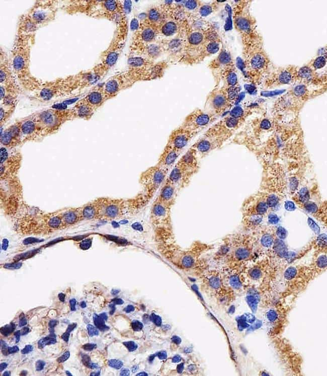 Adenylate Kinase 4 Antibody in Immunohistochemistry (Paraffin) (IHC (P))