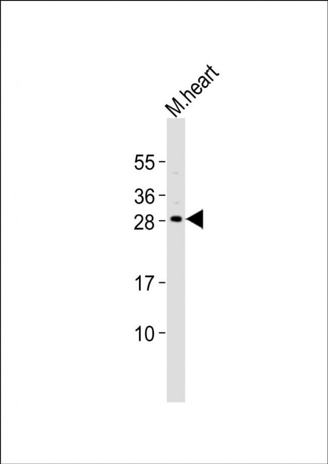 MESP1 Antibody in Western Blot (WB)