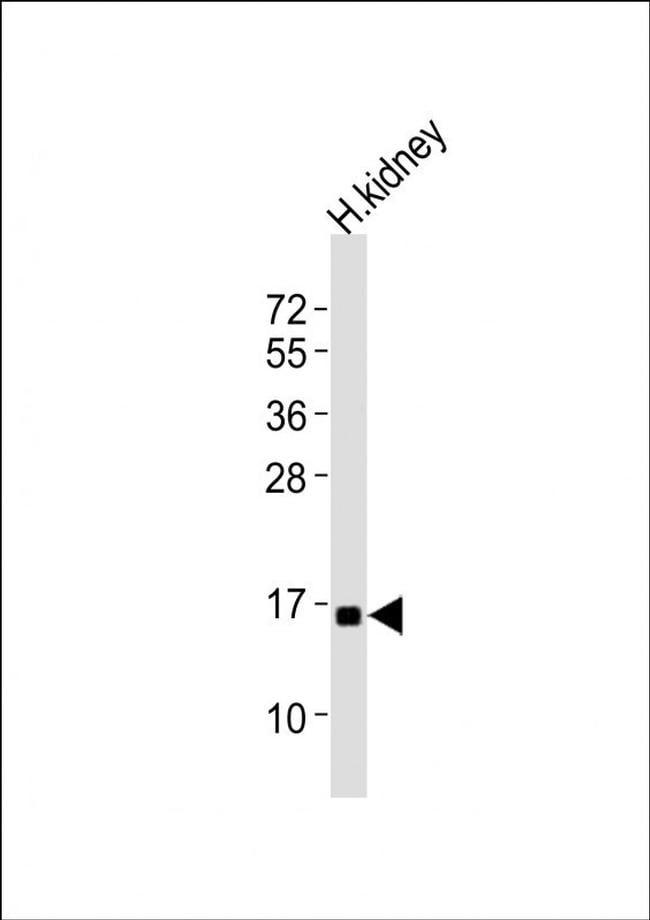 NFE4 Antibody in Western Blot (WB)