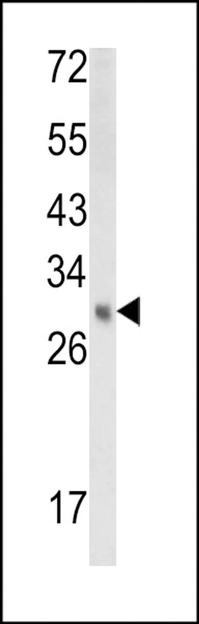 EBP Antibody in Western Blot (WB)