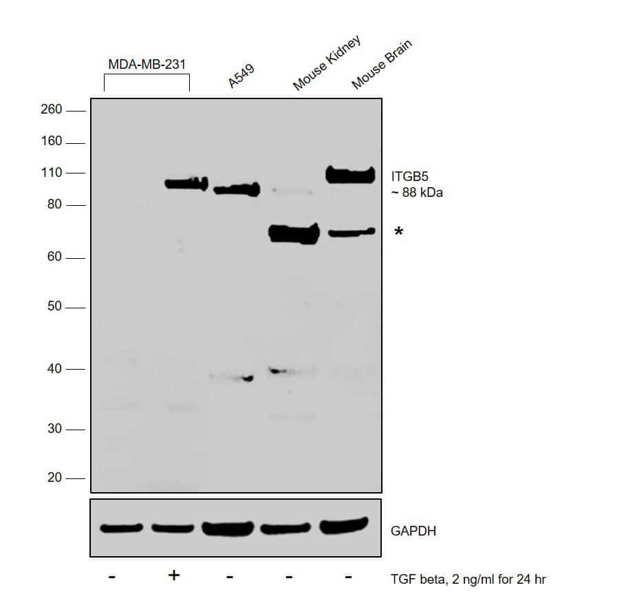 ITGB5 Antibody in Cell treatment