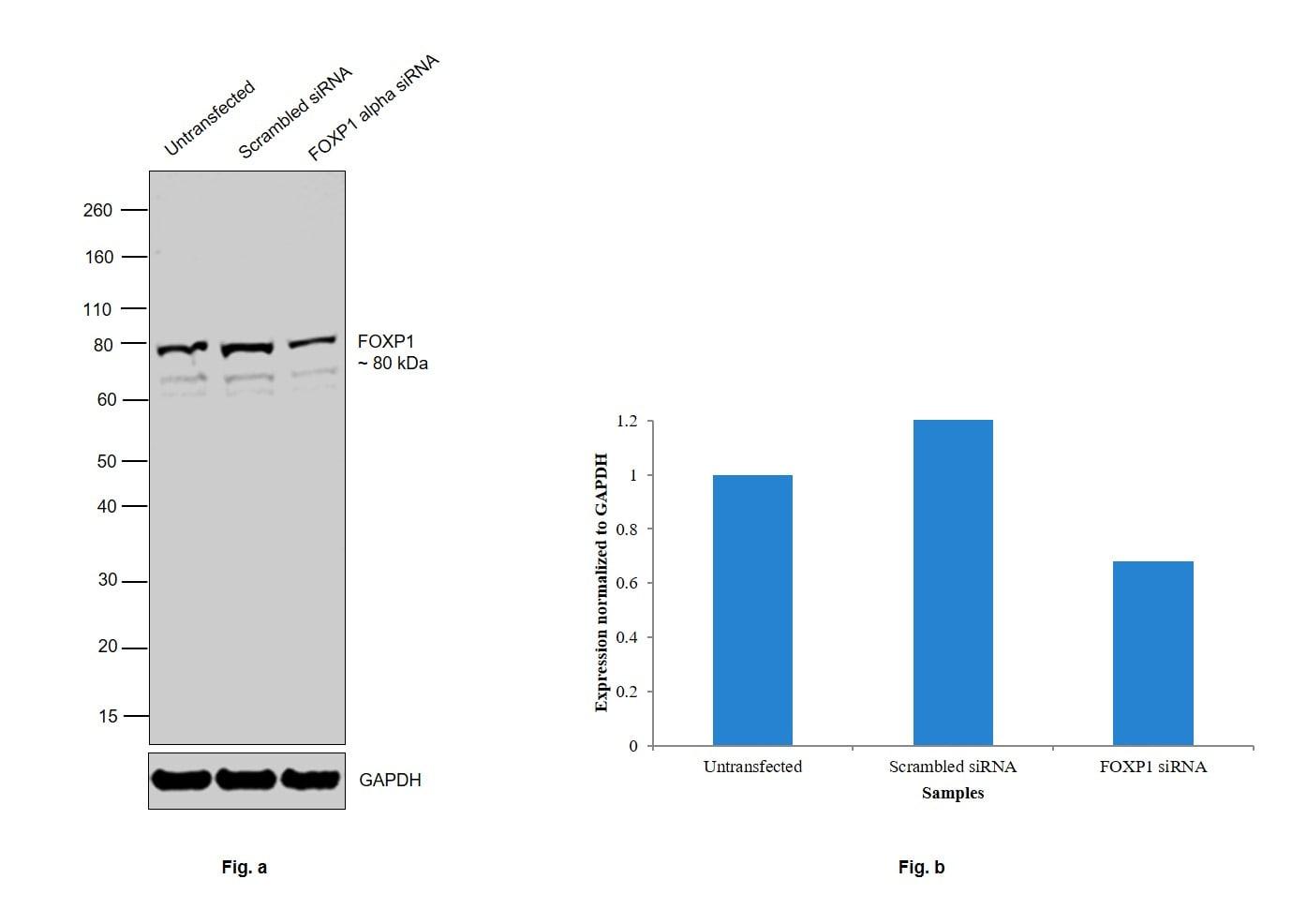 FOXP1 Antibody in Western Blot (WB)