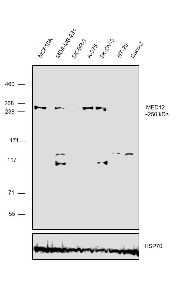 MED12 Antibody