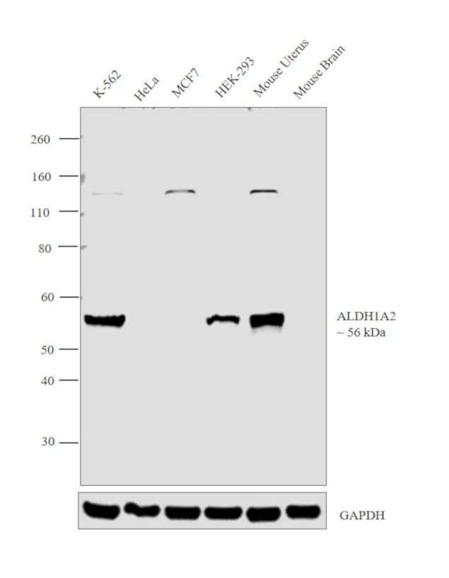ALDH1A2 Antibody in Relative expression