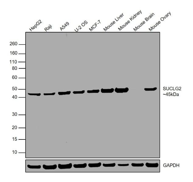 SUCLG2 Antibody in Western Blot (WB)