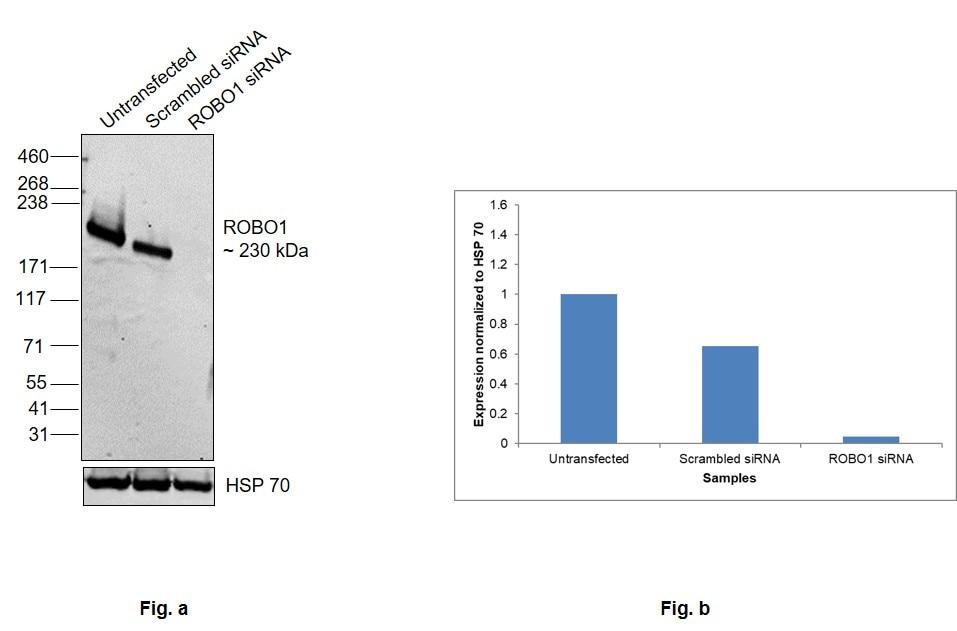 ROBO1 Antibody in Knockdown