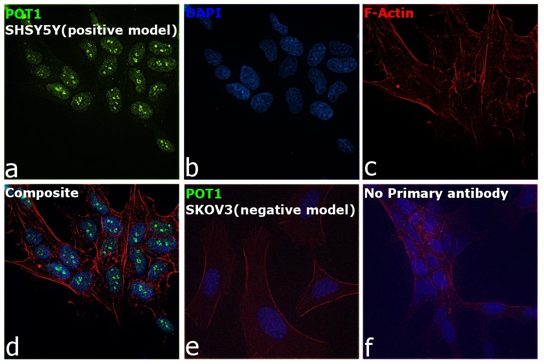 POT1 Antibody in Immunocytochemistry (ICC)