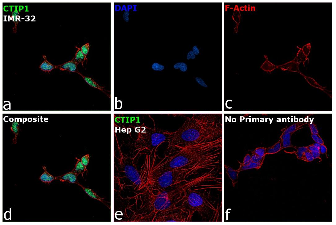 BCL11A Antibody in Immunocytochemistry (ICC)