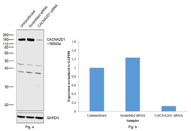 CACNA2D1 (extracellular) Antibody in KnockDown