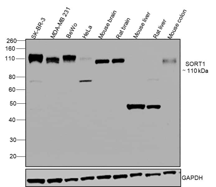 Sortilin (extracellular) Antibody in Relative expression