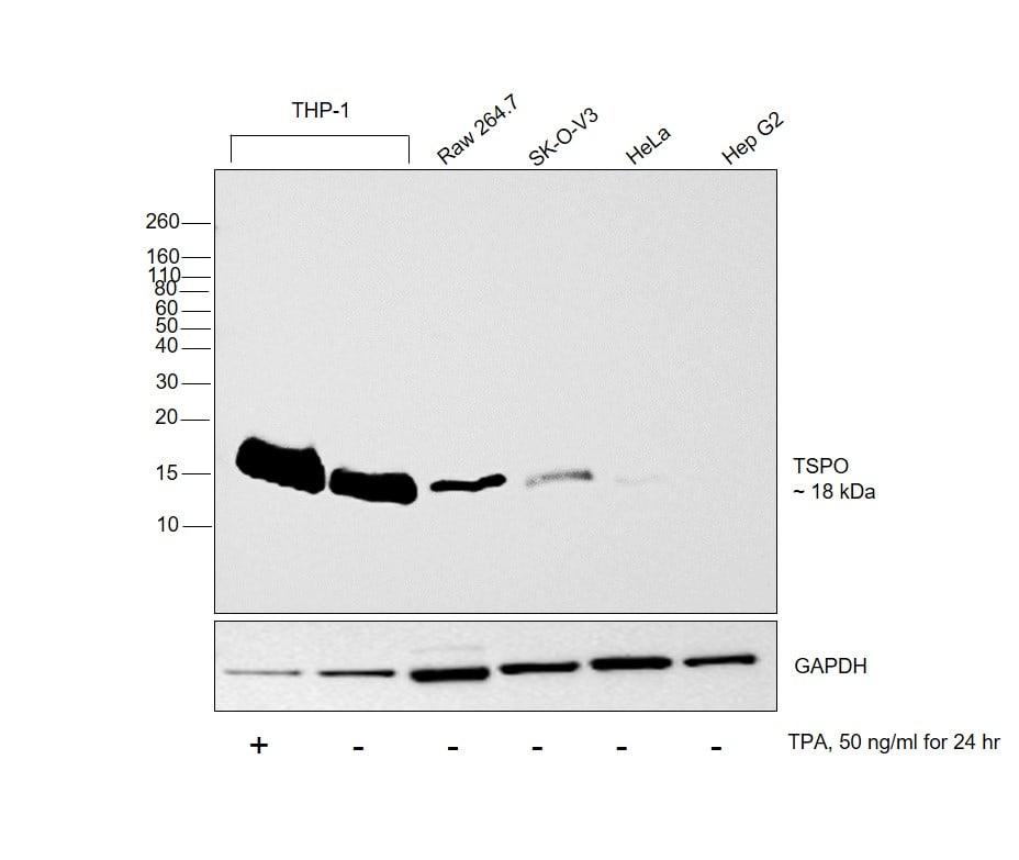 TSPO Antibody in Relative expression