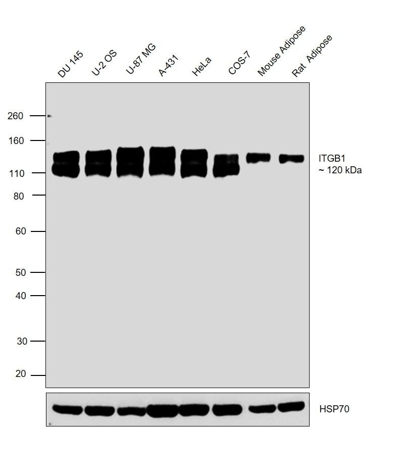 ITGB1 Antibody in Western Blot (WB)