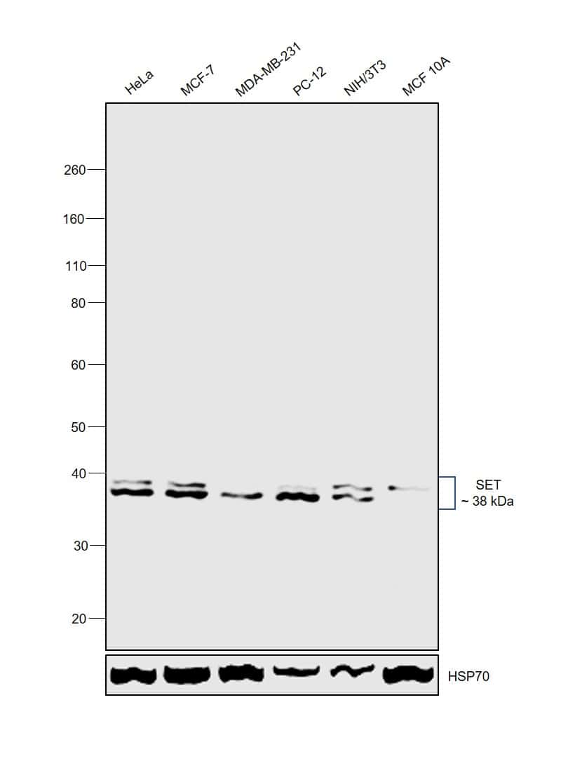 SET Antibody in Western Blot (WB)
