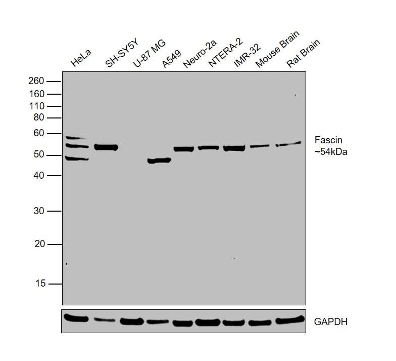 Fascin Antibody in Western Blot (WB)