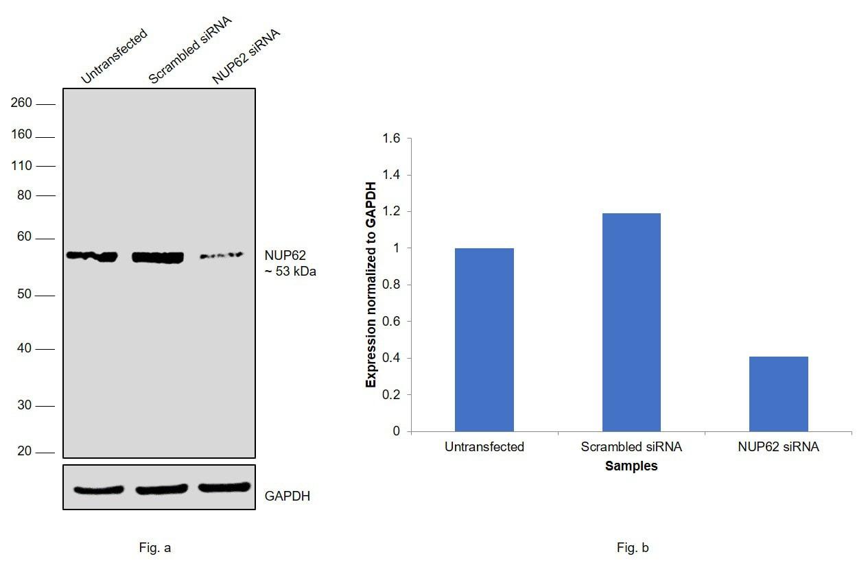 NUP62 Antibody in Knockdown