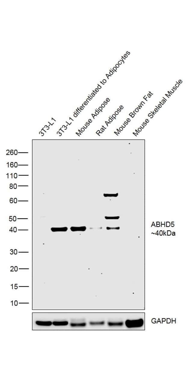 ABHD5 Antibody in Relative expression