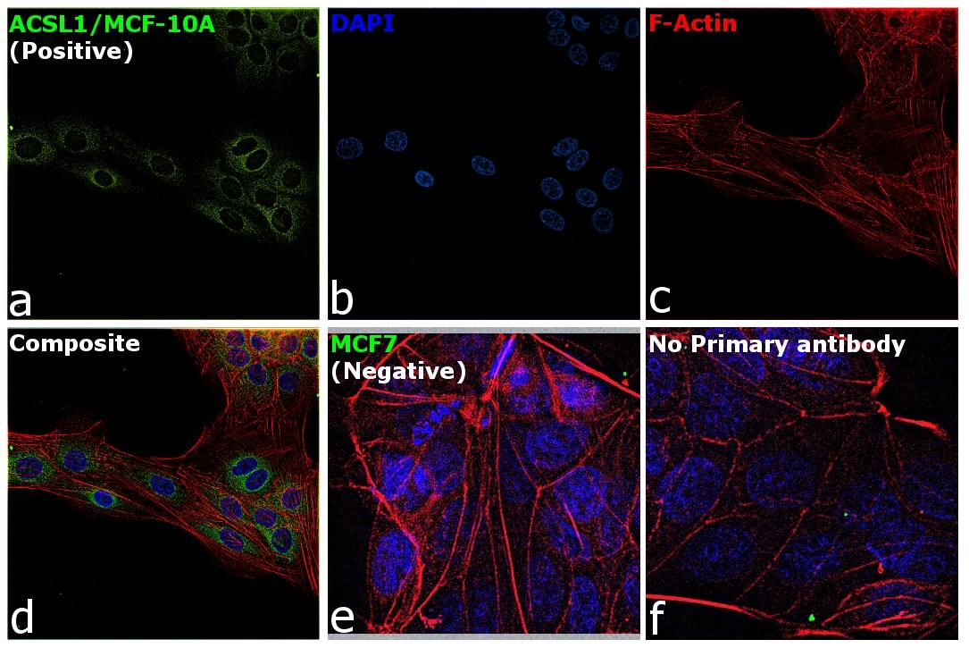 ACSL1 Antibody in Immunofluorescence (IF)