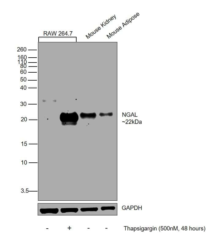 NGAL Antibody in Cell treatment