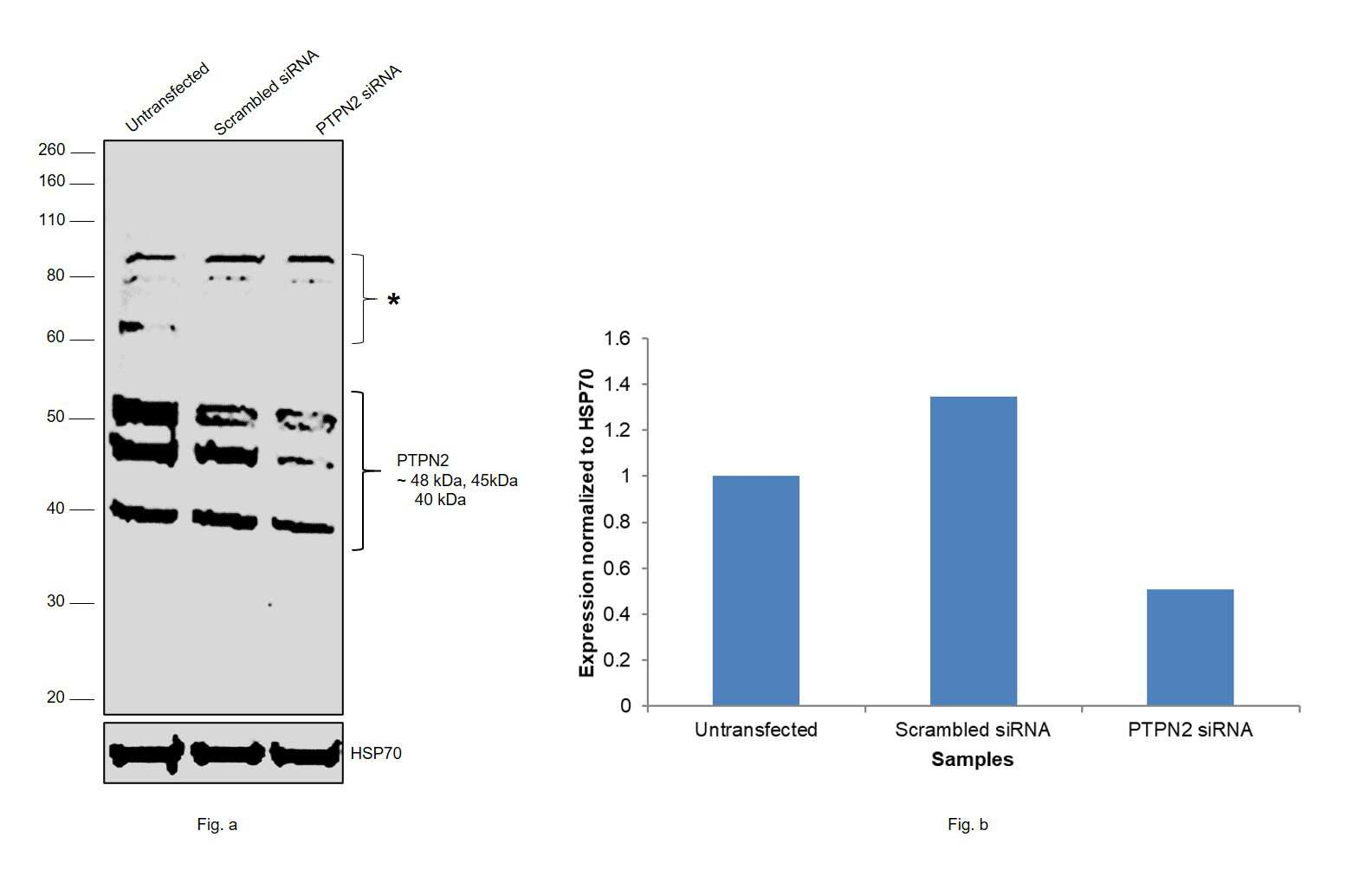 PTPN2 Antibody in Western Blot (WB)