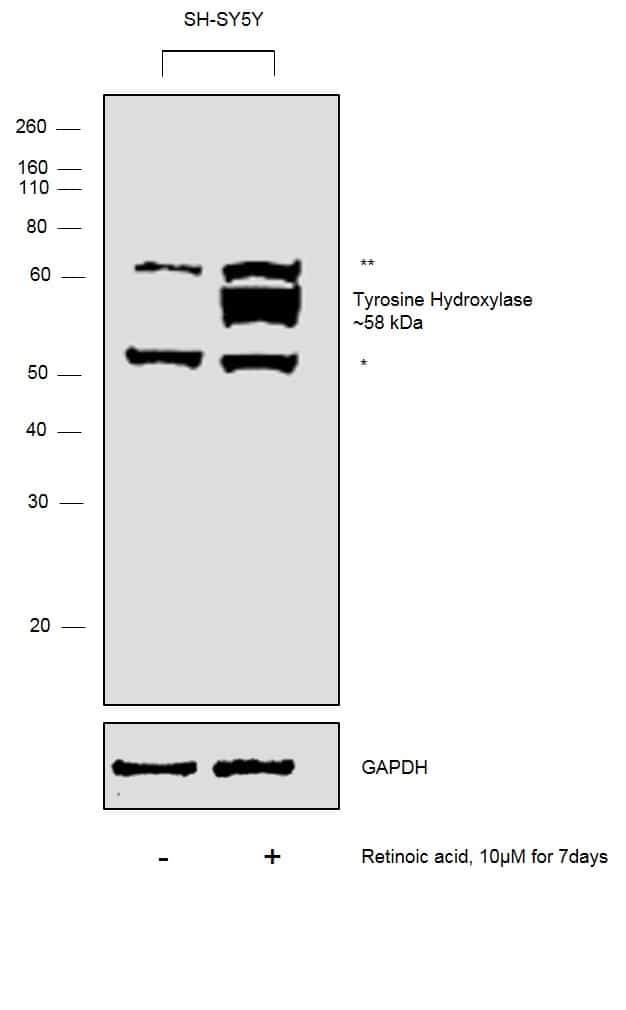 Tyrosine Hydroxylase Antibody in Cell treatment