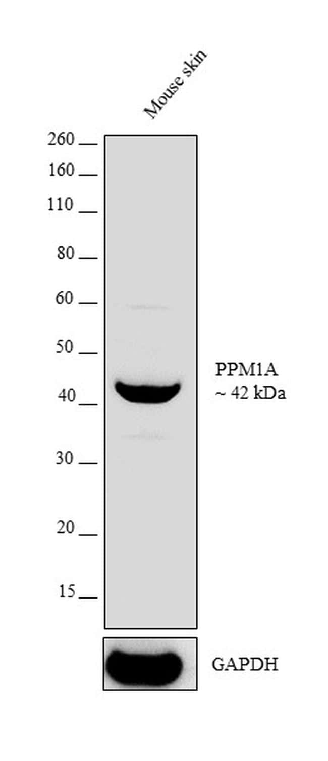 PPM1A Antibody in Western Blot (WB)