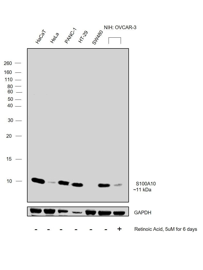S100A10 Antibody in Western Blot (WB)