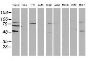 PACSIN3 Antibody in Western Blot (WB)