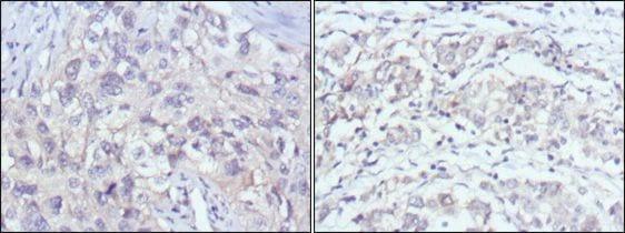 PAK2 Antibody in Immunohistochemistry (IHC)