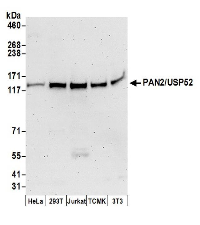 PAN2/USP52 Antibody in Western Blot (WB)