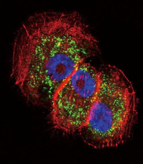 Parkin Antibody in Immunofluorescence (IF)