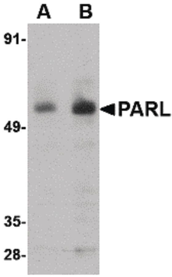 PARL Antibody in Western Blot (WB)