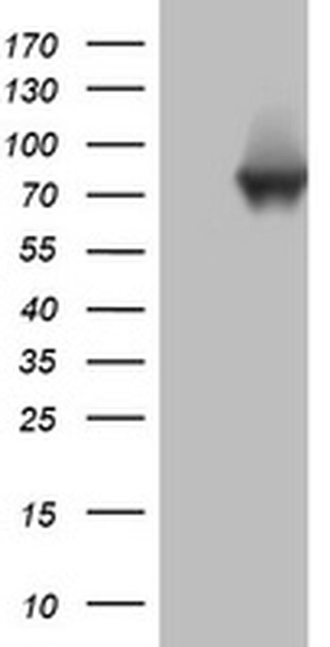 PARN Antibody in Western Blot (WB)